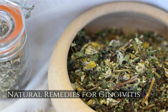 Natural Remedies for Gingivitis